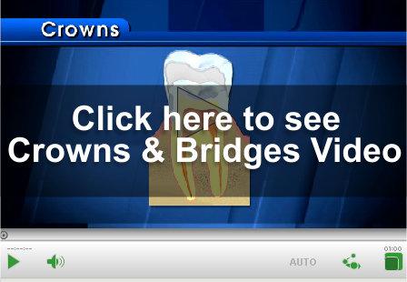 Crown & Bridge Video