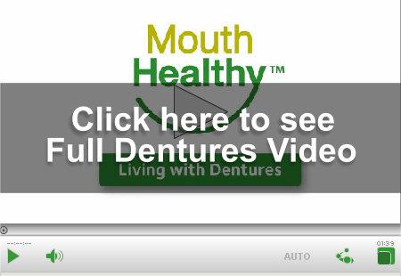 Removable Full Dentures