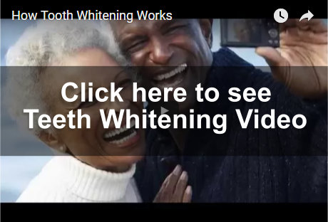 Teeth Whitening Video