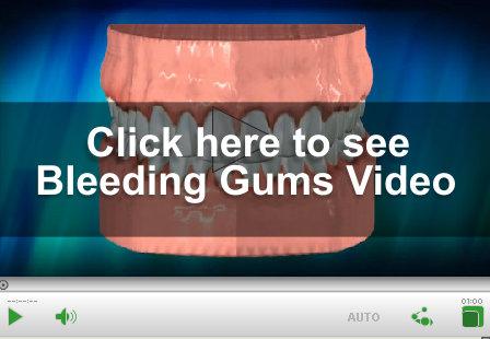 Bleeding Gums Video