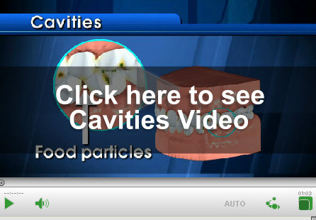 Cavities Video