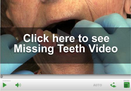 Missing Teeth Video