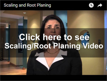 Scaling and Root Planing Video