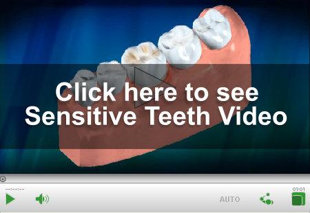 Sensitive Teeth Video