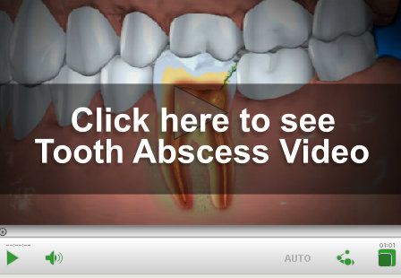 Tooth Abscess Video