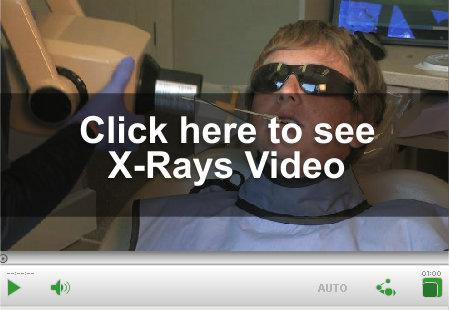 XRay Video Link